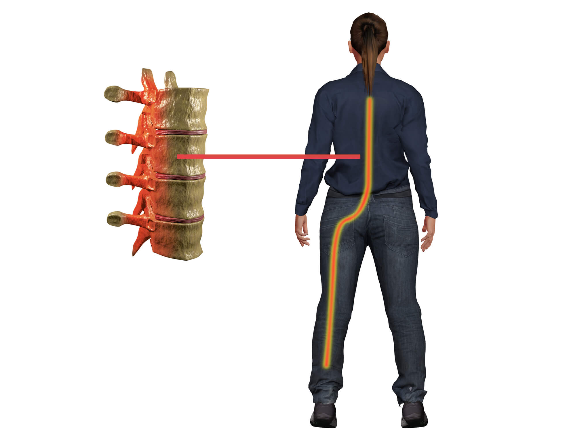 treat your sciatica pain with experienced chiropractors in midland michigan